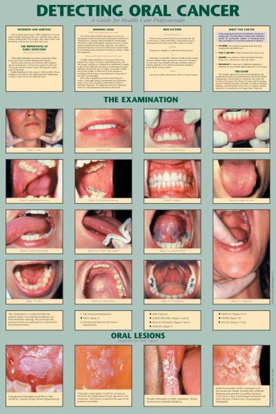 Eξέταση για καρκίνο του στόματος